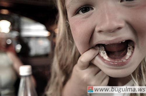 http://www.dentalfantasy.ru/services/therapy/lechenie-kariesa-molochnykh-zubov/